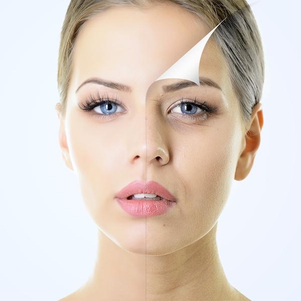 chemical-facial-peel
